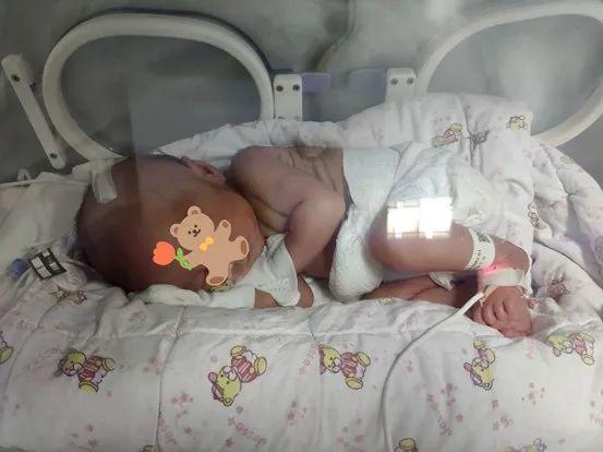 惨的不只有早产,还有麻醉过早失效的剖腹产