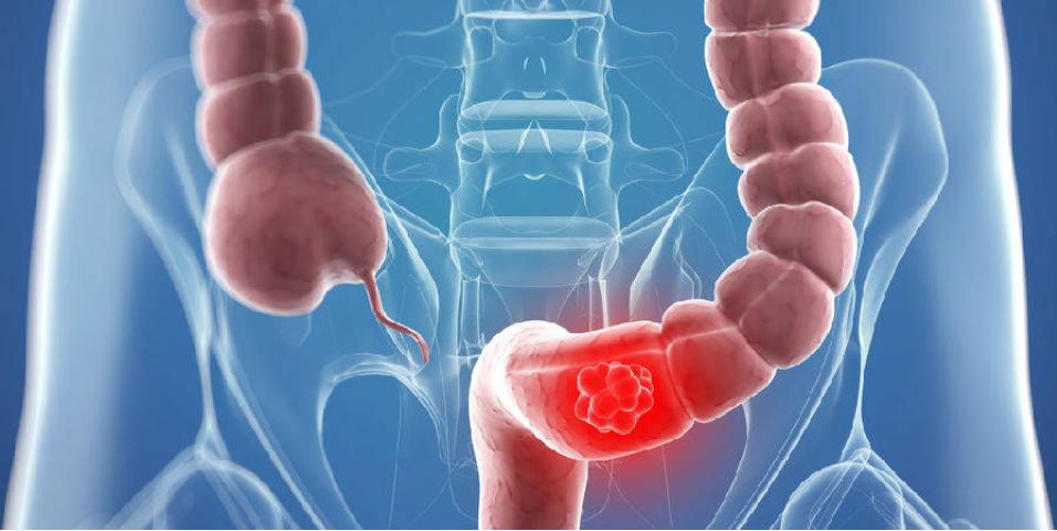 大便中有血是癌症吗?细数便血的11个常见原因